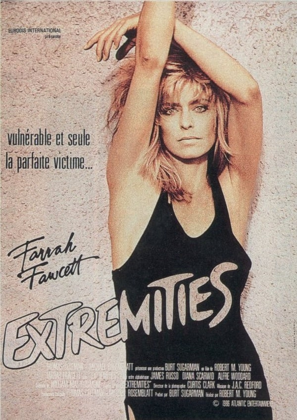 Extremities; Limbs